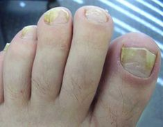 17 Home Remedies for Toenail Fungus. Onychomycosis or in much simpler terms, nail fungal infection, is a condition affecting fingernail as. White Toenail Fungus, Toenail Fungus Home Remedies, Toenail Fungus Treatment, Nail Treatment, Thick Toenails, Infection Fongique, Medicinal Plants, Fungi, Apothecaries