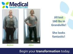 Jill lost 160 pounds! •••••••••••••••••••••••••••••••••••••••••••••• Are you looking to improve your health and lose a few pounds along the way? Book your FREE consultation with us today! #TransformationTuesday