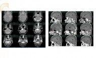Beyin Tümörü http://www.nihategemen.com/beyin-kanamasi/