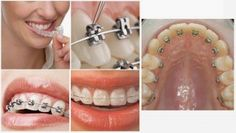 Quy trình niềng răng an toàn