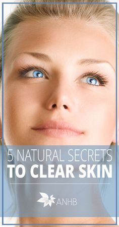 5 Natural Secrets to Clear Skin - All Natural Home and Beauty #clearskin #skincare #naturalhealth
