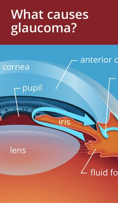 Three main causes of Glaucoma and who is at risk. Eye Anatomy, Gross Anatomy, Eye Cataract, Diseases Of The Eye, Human Body Organs, Eye Facts, Medical Anatomy, Human Anatomy And Physiology, Eyes Problems