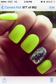 20 Cute Summer Nail Designs For 2019 While having an eye-catching manicure is a great idea all year round, theres something about summer that makes you feel more adventurous. Whether its embracing ultra-bright. Neon Yellow Nails, Bright Summer Nails, Cute Summer Nails, Neon Nails, Glitter Nails, Cute Nails, Bright Nails Neon, Neon Nail Art, Stiletto Nails