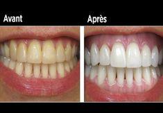Faites blanchir vos dents jaunies en moins de 2 minutes avec cette astuce… | NewsMAG