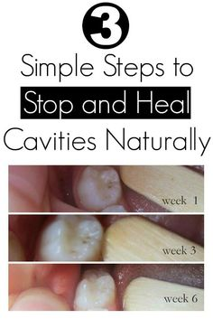 Health Matters: 3 Simple Steps to Stop and Heal Cavities Naturally