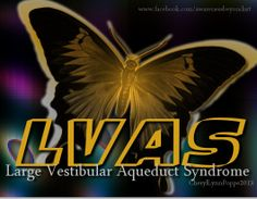 LVAS (Large Vestibular Aqueduct Syndrome)