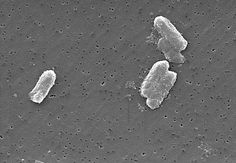 Drug-resistant 'nightmare bacteria' show worrisome ability to diversify and spread. Its coming, get ready Klebsiella Pneumoniae, Geology, Drugs, Scientists, Microbiology, Foreign Policy, Homeopathy, Harvard, Public Health