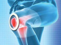 膝痛用サポーター