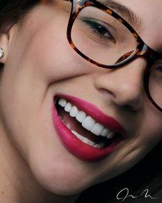 En vivo y en directo !!! Diseño de Sonrisa Mínimamente Invasivo. Fotografía…