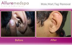 http://marisia.com/mole-wart-removal/newsletter008/ #Mole Wart Removal => Get Your Mole Wart Removal Mini-Course For Free Now!