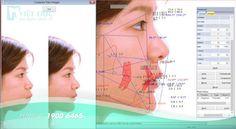 Chi phí niềng răng khểnh công nghệ BRACES 6S | Nha khoa Quốc tế Việt Đức