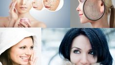 How To Relieve Dry Skin In Winters