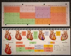 This would've been much more convenient to have in medic school. Way easier to understand this way.