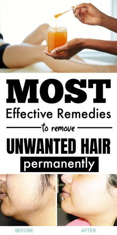 How To Remove Unwanted Hair Naturally & Permanently At Home  #unwantedhair #hairemoval #unwantedhairemoval #beauty #beautyhacks #beautycare #PermanentFacialHairRemoval Permanent Facial Hair Removal, Chin Hair Removal, Underarm Hair Removal, Electrolysis Hair Removal, Natural Hair Removal, Remove Unwanted Facial Hair, At Home Hair Removal, Unwanted Hair, Best Hair Removal Products