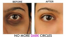 If you're seeing dark circles under your eyes and are looking for dark circle home remedies, then you'll be happy to learn that there's light at the end of the circle. Dark circles may make you fee… Dark Circles Treatment, Dark Circles Under Eyes, Dark Under Eye, Ongles Plus Forts, Dark Circle Remedies, Circulation Sanguine, Eye Gel, Wrinkle Remover, Dark Eyes