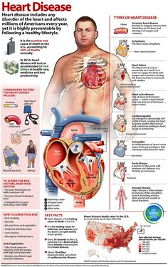 Heart Disease Infographic | by A Health Blog