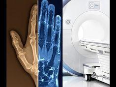Öffentlicher Vortrag: Röntgen oder Röhre? Diagnose von Ischias Meniskus und Hallux auf dem Bild