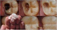 A cuantos de nosotros no nos gusta ir al odontologo? Por eso hoy te mostraremos cómo terminar con el dolor de caries tan terrible