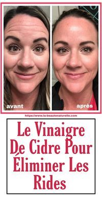 If you are looking to eliminate wrinkles but you do not know how, cider leviniger is the option. Take it out of your kitchen and apply it on your skin now. Beauty Tips For Face, Best Beauty Tips, Natural Beauty Tips, Health And Beauty Tips, Beauty Care, Diy Beauty, Natural Skin Care, Beauty Skin, Beauty Hacks