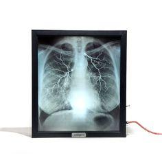 Mentalpieces X-Ray Lightbox // Internal Medicine By Kelly Hoffman
