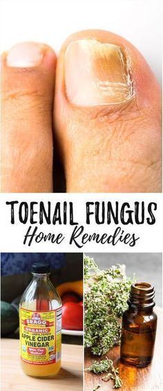 Home Remedies for Toenail Fungus That Really Work - Toenail fungus can be embarrassing. Cure nail fungus at the source using these powerful and simple home remedies. #NailFungusVicks