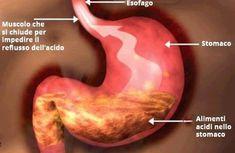 Acid Reflux Recipes, Stop Acid Reflux, Stomach Acid, Simple Way, Health Care, Healthy Living, Disney, Medicine, Diets