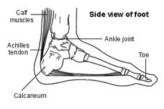 Achilles Tendinopathy. Treatment and Information   Patient