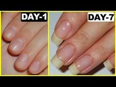 How to Grow Nails Faster - GUARANTEED RESULTS - Glowpink