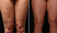 How to Get Rid of Cellulite on Legs? How to get rid of cellulite on legs? Home remedies for cellulite on legs. Treat cellulite on legs fast and naturally. Ways to cure cellulite on thighs. Cellulite Scrub, Cellulite Remedies, Reduce Cellulite, Cellulite Cream, Fitness Workouts, Yoga Fitness, Tips Belleza, Anti Cellulite, Body Scrubs