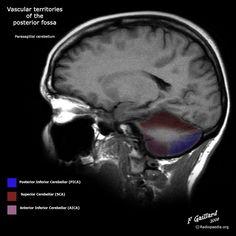 Radiology Quiz 36095 | Radiopaedia.org
