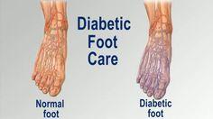 Diabetic Foot Care - http://footandanklefocus.com/diabetic-foot-care/