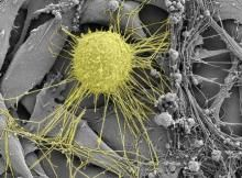 A breast cancer cell (yellow) under the electron microscope. Scientists from the Biozentrum of the University of Würzburg describe in the la...