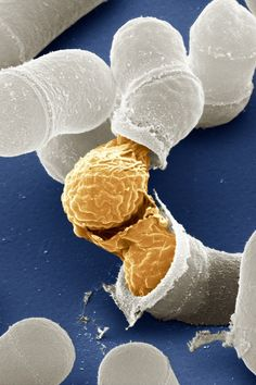 Birth of a yeast cell. | 21 Jaw-Dropping Photographs Of Life, Magnified  Very cool! ~Bethany Lau