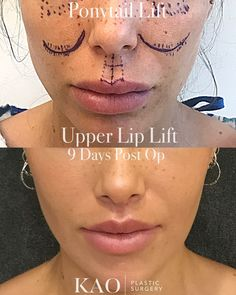 - Ponytail Lift & Upper Lip Lift: She is a 30 yo from Europe who had about 20 syringes of over last several years. She became aware that the were making her very stiff and un-natural looking. She also wanted her brows to be more tilted and her eyes Lip Implants, Facial Implant, Facial Procedure, Cheek Fillers, Facial Fillers, Botox Fillers, Botox Brow Lift, Eyebrow Lift, Lip Surgery