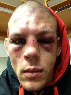 UFC , That's What Happens..