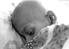 Descoberto fator que aumenta em 2.700 vezes risco de leucemia