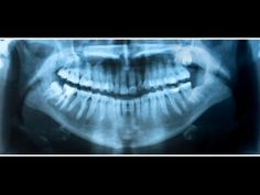Dental x-rays linked to common brain tumor