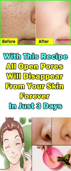 How to get rid of skin pores? Here is the simple and easy skin pores treatment. You can make this skin pores remedy DIY at home. This skin pores treatment is easy to make and use How to refine pores permanently? There is no overnight pore minimizer. Pimple Scars, Acne And Pimples, Cystic Acne Treatment, Scar Treatment, Face Treatments For Acne, Face Treatment At Home, Face Care Routine, Skin Routine, Acne Face Mask