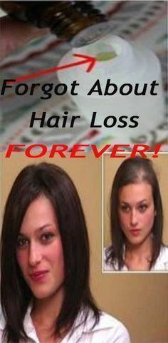 She Added This into Her SHAMPOO and Forgot About Hair Loss FOREVER! She Now Recommends Her Trick To Everyone!