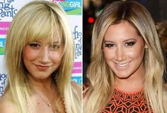 Top 10 best celebrity nose jobs featuring Kim Kardashian, Ashley Tisdale, Blake Lively, Diana Argon, Cameron Diaz etc. Extreme Plastic Surgery, Celebrity Plastic Surgery, Britney Spears Nose Job, Ashley Tisdale Nose Job, Famous Celebrities, Celebs, Diana Argon, Rhinoplasty Before And After, Celebrities Before And After