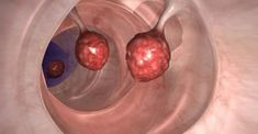 Los médicos están en shock: ¡Esto mata el 93% del cáncer de colon en solo 2 días!