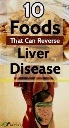 Do you ever think how your liver functions in our Body? Liver is the most essential organ in our body and responsible for many crucial functions such as digesting our food, storing energy and also removing toxins from our body. Best Liver Detox, Fatty Liver Diet, Cleanse Your Liver, Liver Detox Cleanse, Healthy Liver, Healthy Detox, Healthy Hair, Healthy Foods, Healthy Eating
