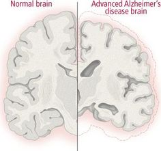Is it Alzheimer/dementia? Did you know that there are conditions/ diseases whose symptoms may mimic Alzheimer/dementia? Great resource for reading as you go through the diagnosis process. Lewy Body Dementia, Dementia Symptoms, What Is Dementia, Alzheimer's And Dementia, Alzheimers Awareness, Senior Fitness, Medical Problems, Brain Health, Caregiver