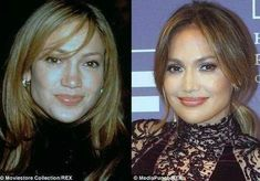 Jennifer Lopez Plastic Surgery Before And After Photos, J Lo's beauty secrets rumors and artificially enhanced face has developed a lot over the years. Jennifer Lopez Plastic Surgery, Rhinoplasty Surgery, Celebrity Plastic Surgery, Bold Brows, Cosmetic Procedures, Liposuction, Celebrity Look, Celebs, Celebrities