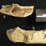 Une tumeur vieille de 120 000 ans !