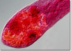 Heterophyes heterophyes and metagonimus yokohawai are referred to as the heterophyids. The diagnosis process is driven by eggs in feces. People become infected when they eat undercooked fish so I suggest that everyone cooks their fish. Heavy infections causing mucoid diarrhea can form. Also granulomas sometimes occur. This is treated with praziquantel. Disease names are Heterophyiasis and Metagonimiasis.