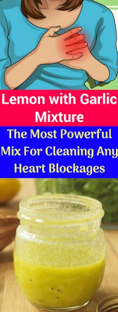 Watch This Video Captivating Clear Blocked Arteries with Natural Health Remedies Ideas. Splendid Clear Blocked Arteries with Natural Health Remedies Ideas. Holistic Remedies, Natural Health Remedies, Heart Blockage, Health And Beauty, Health And Wellness, Clogged Arteries, Calendula Benefits, Stress, Garlic