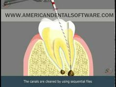Dental Patient Education - Root Canal Treatment