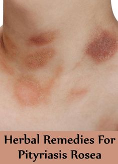 11 Proven Ways to Get Rid of Pityriasis Rosea | A Recovery ...