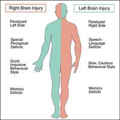 Left vs Right Brain Stroke Stroke of Misfortune Living La Vida Normal Left Vs Right Brain, Right Side Stroke, Nursing School Notes, Nursing Schools, Lpn Schools, Medical School, Elementary Schools, Nursing Tips, Nursing Programs